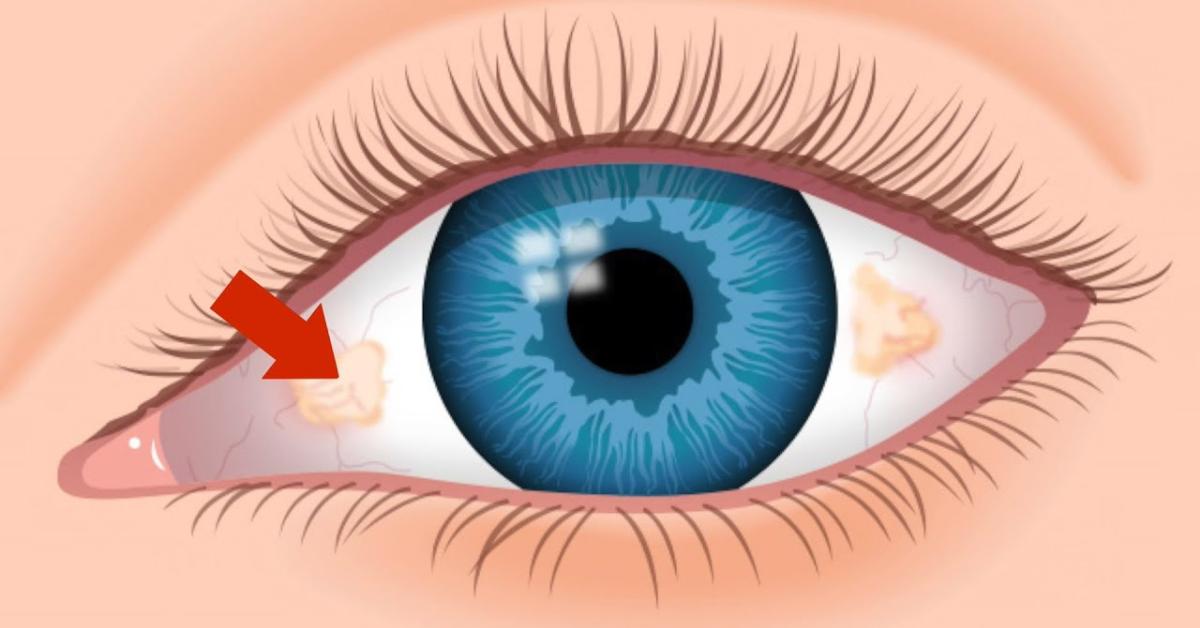 Šta može izazvati žute mrlje na oku?